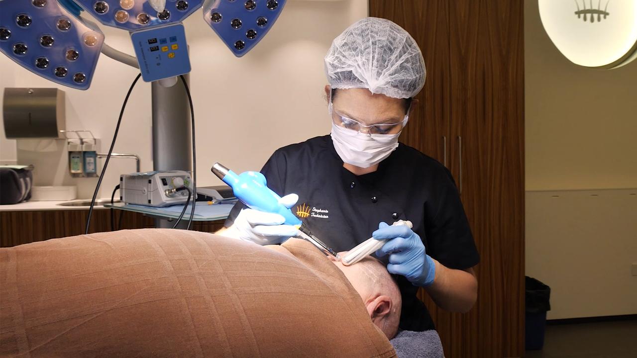 Mislukte haartransplantatie herstellen