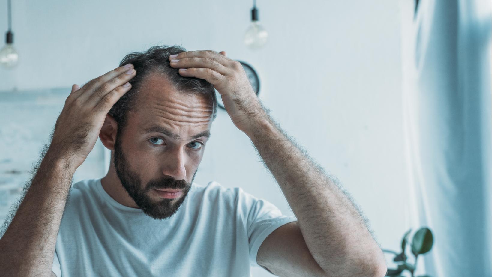 Alopecia - Hair Science Clinic